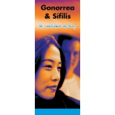 In The Know: Gonorrhea and Syphilis-Today's Realities Pamphlet SPANISH Version